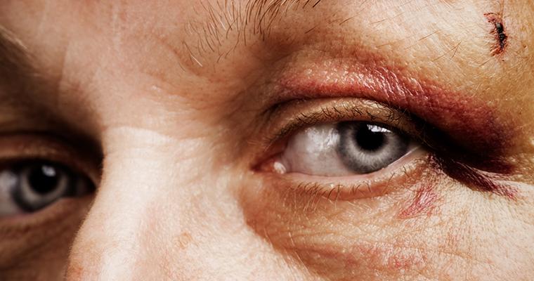 Les accidents de l'oeil