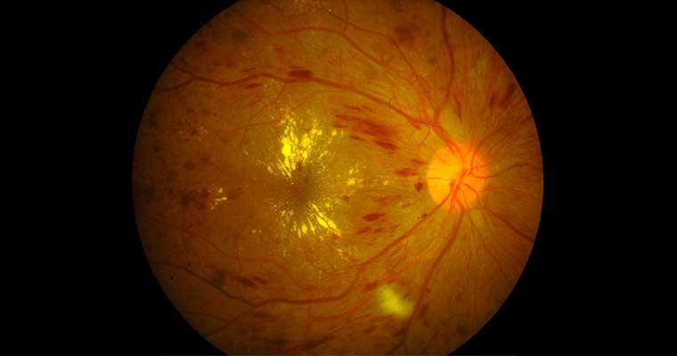 retinopathie-diabetique_2